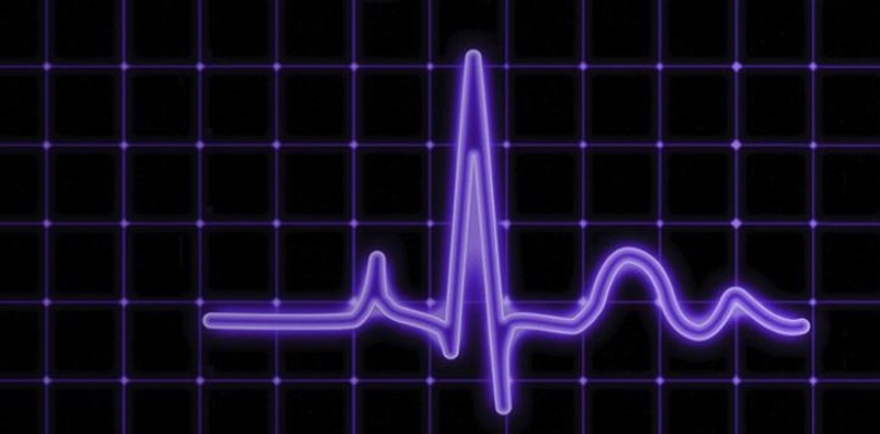 heart beat monitor graphic from KPMG dotbrand homepage home.kpmg